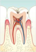 むし歯 C1