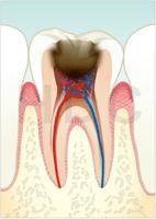 むし歯 C3